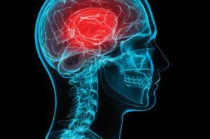 traumatic-brain-injury_tbi